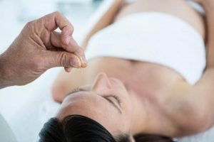 Acupuncture Helps During Pregnancy