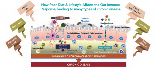 G.E.M.M Gut Ecology and Metabolic Modulation